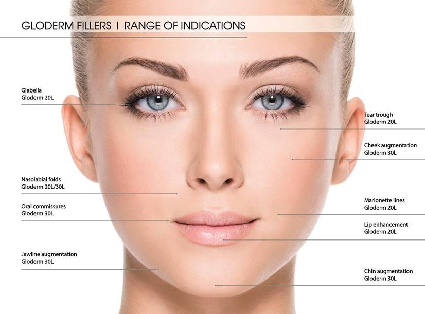gloderm fillers indication